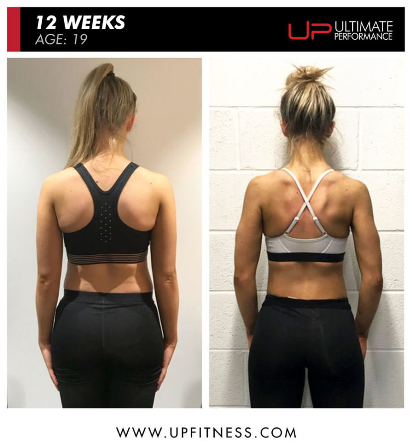 Sofia's before and after back results with Ultimate Performance